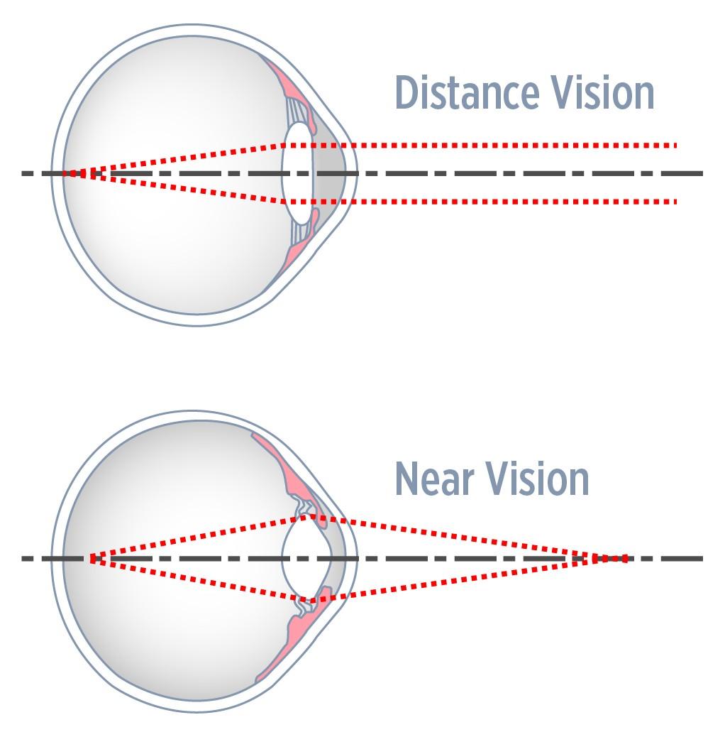 Eye Focusing (Accommodation) - Eyecare Kids